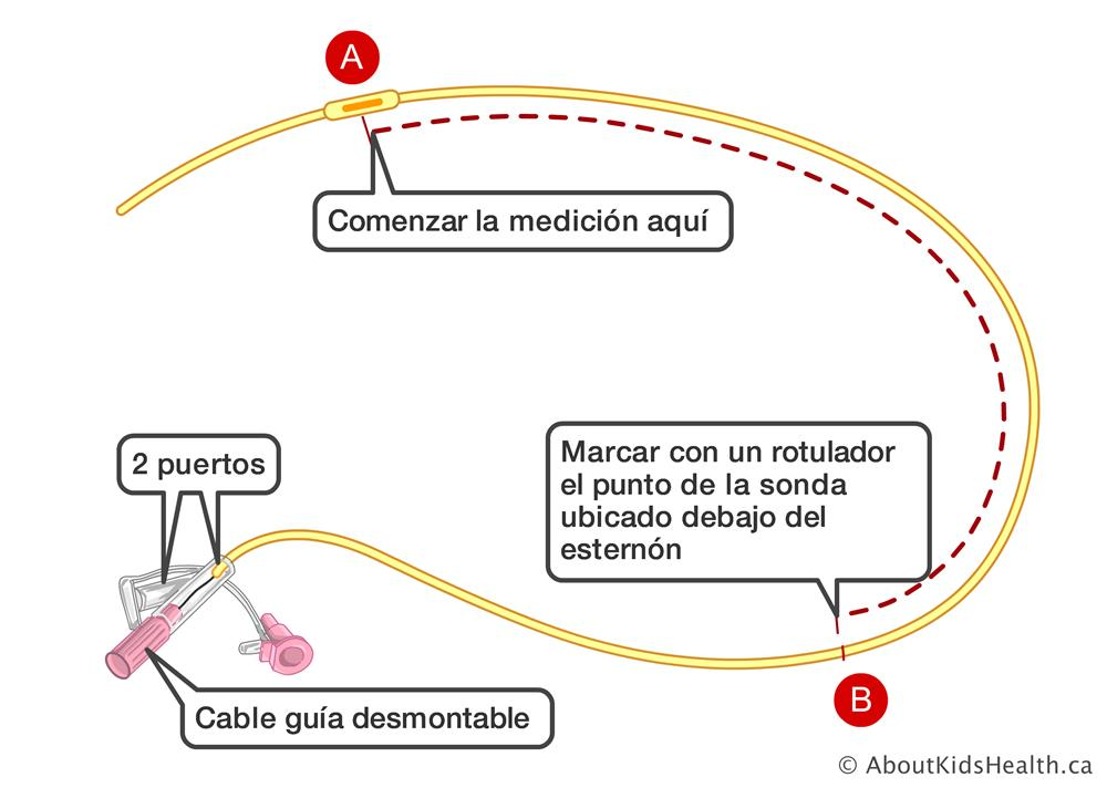 Sonda Nasogástrica Ng Cómo Insertar La Sonda Nasogástrica De Su Niño