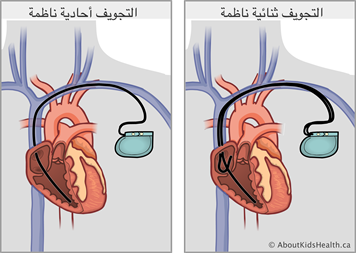 جهاز تنظيم ضربات القلب رعاية طفلك في المنزل