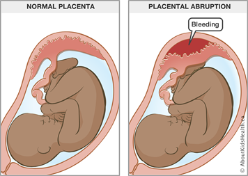 Causes and prevention of premature birth