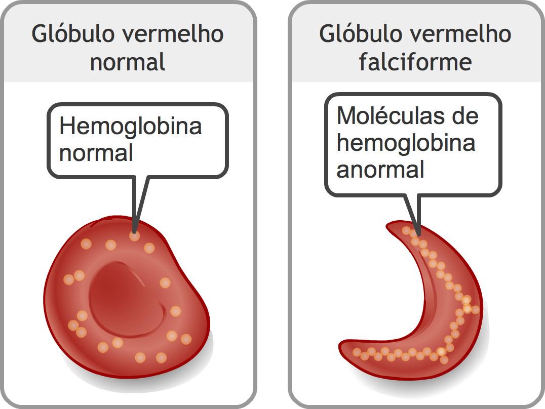 8 de de hemoglobina anemia