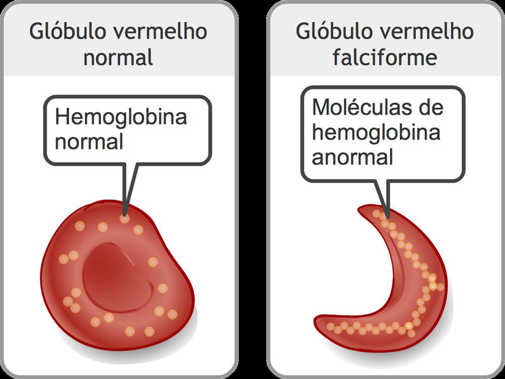 quais as causas da anemia falciforme