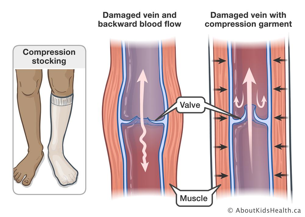 1499301d72 A damaged vein with backward blood flow and a damaged vein with compression  garment allowing for
