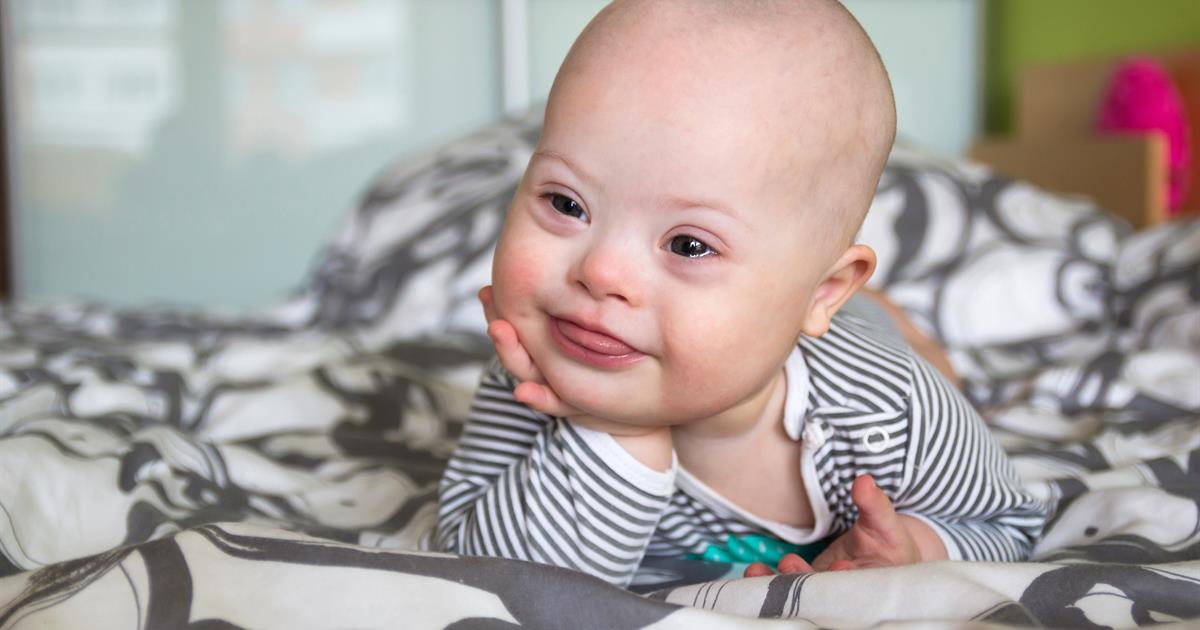 Down syndrome: Related medical conditions