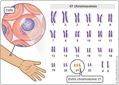 Why develop chromosomal problems sex