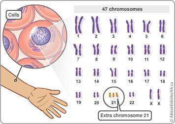 Chromosomal Problems In Newborn Babies