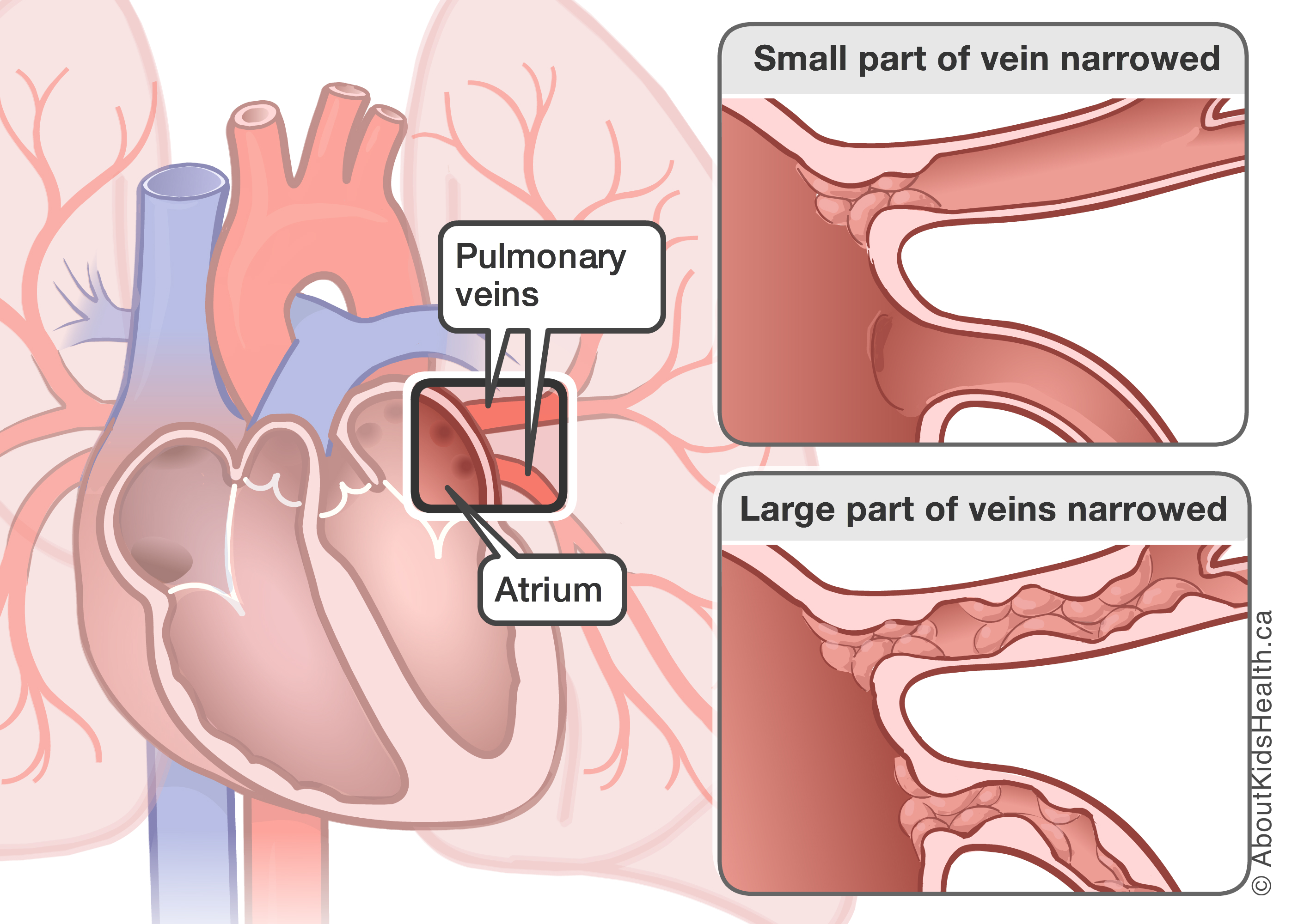 pulmonary vein stenosis Hand Veins in Wrist and All Names illustration of small part of vein narrowed and large part of veins narrowed