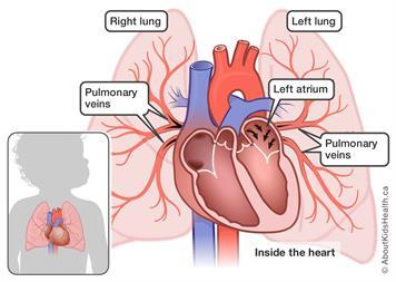 Pulmonary vein stenosis