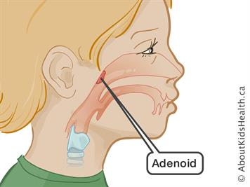 Adenoid surgery: Caring for your child after the operation