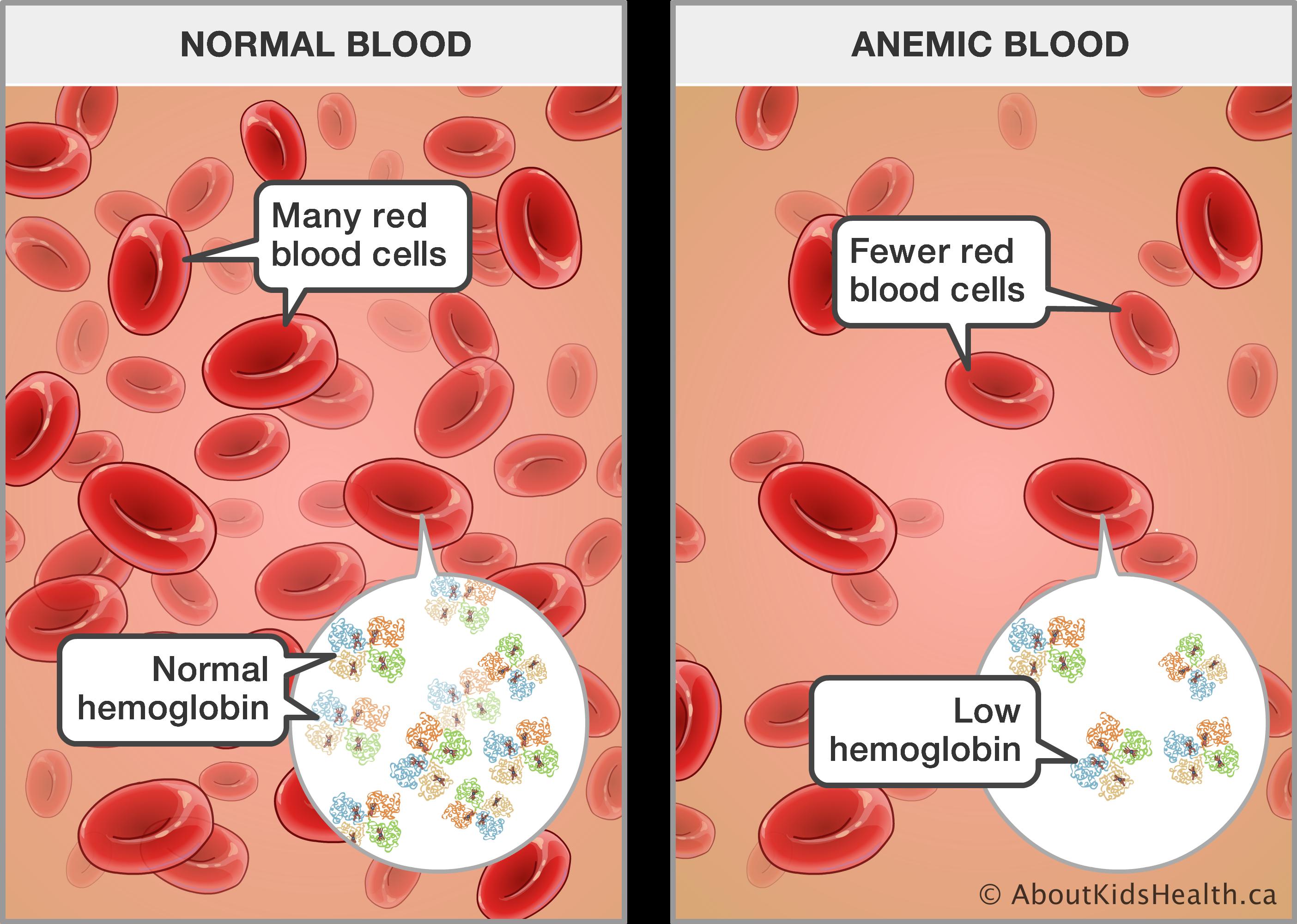 Cuanto de hemoglobina debe tener un bebe