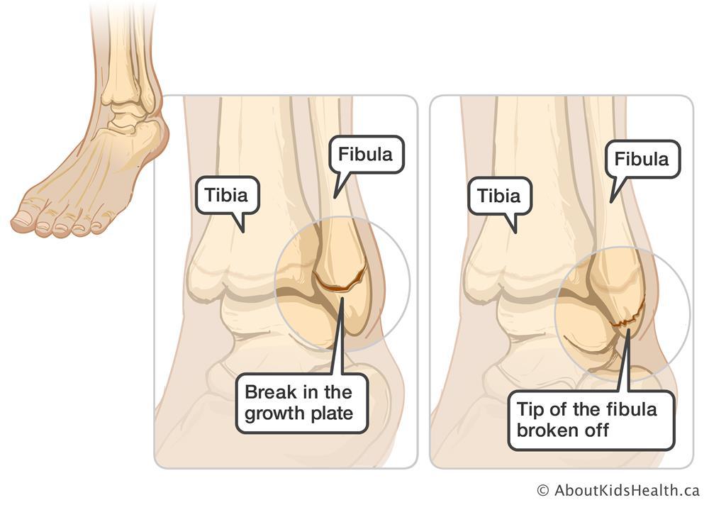Minor Ankle Injuries