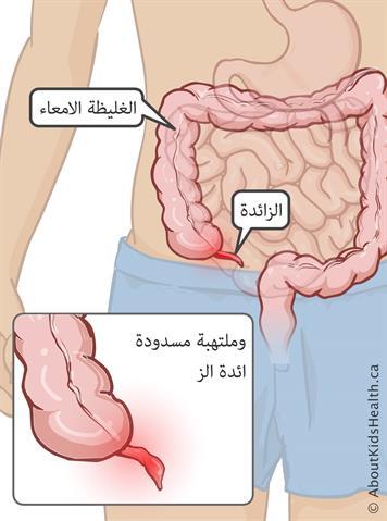 التهاب الزائدة