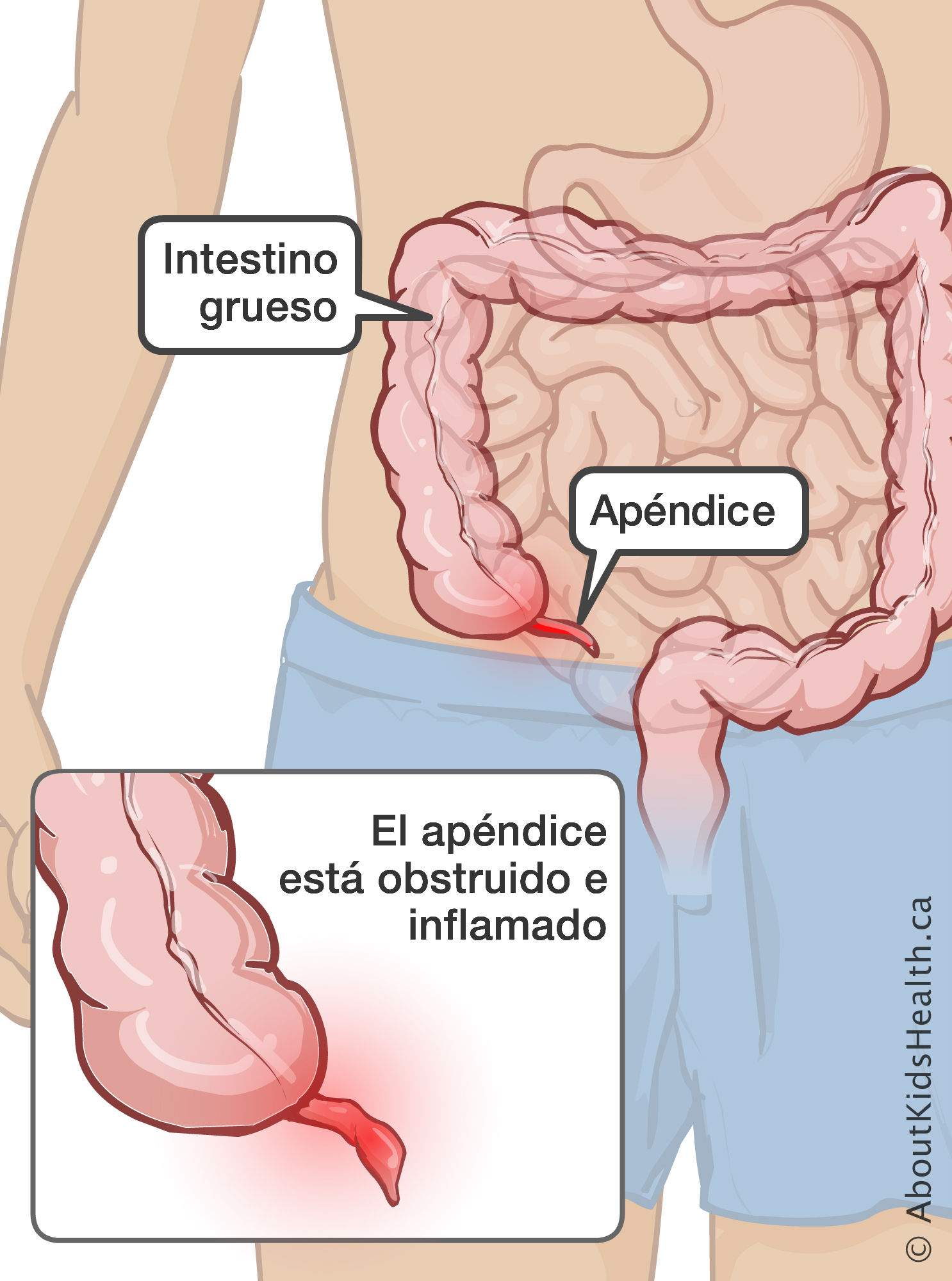 Apendicitis signos y sintomas