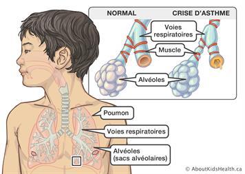 Qu'est-ce que l'asthme?
