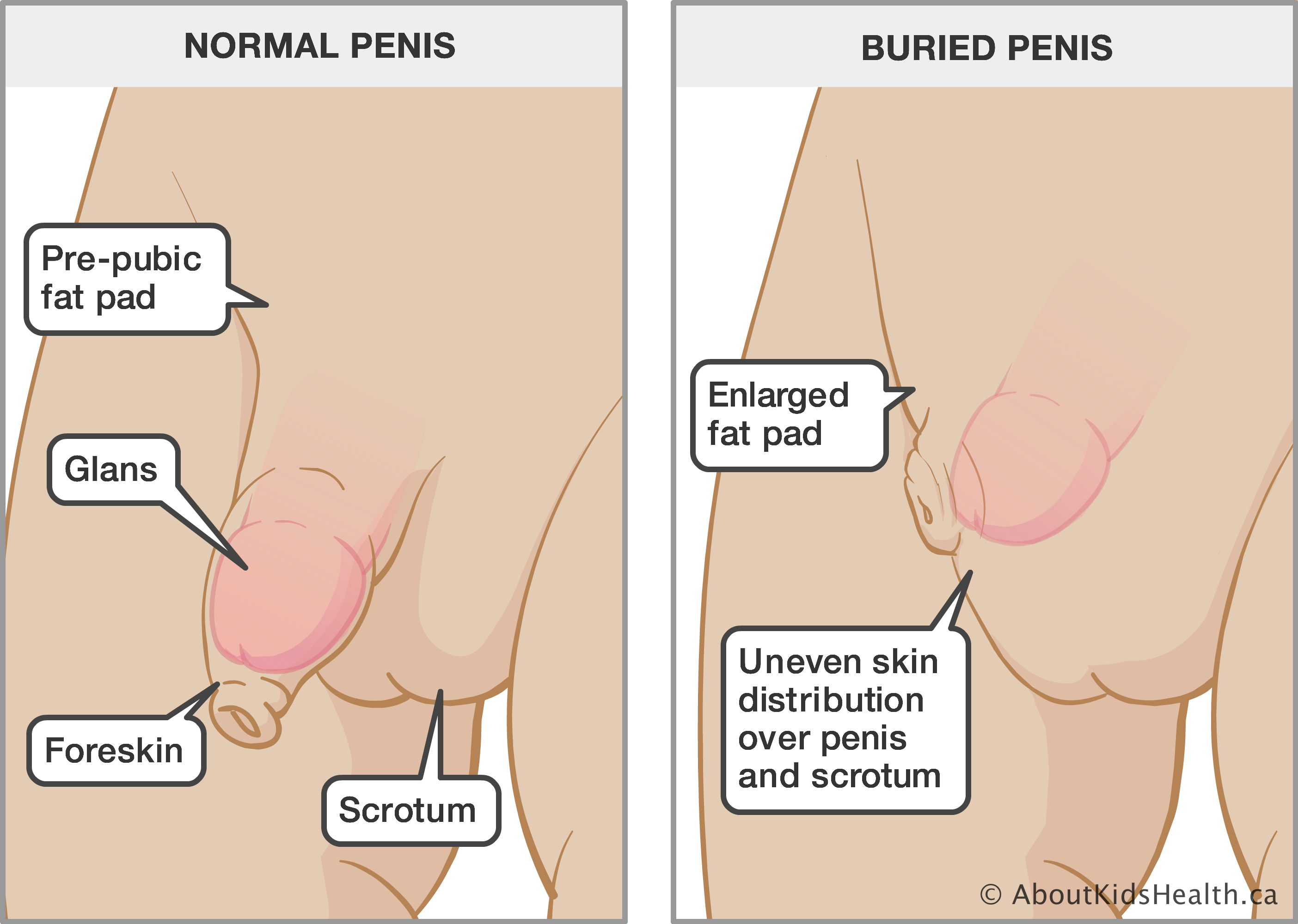 Small uncut foreskin boy penis