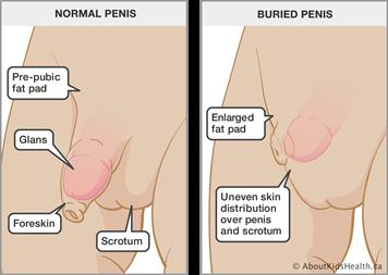 why do boys get boners