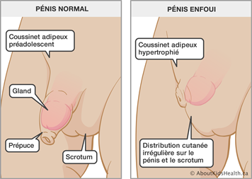 Les medecins video de sexe