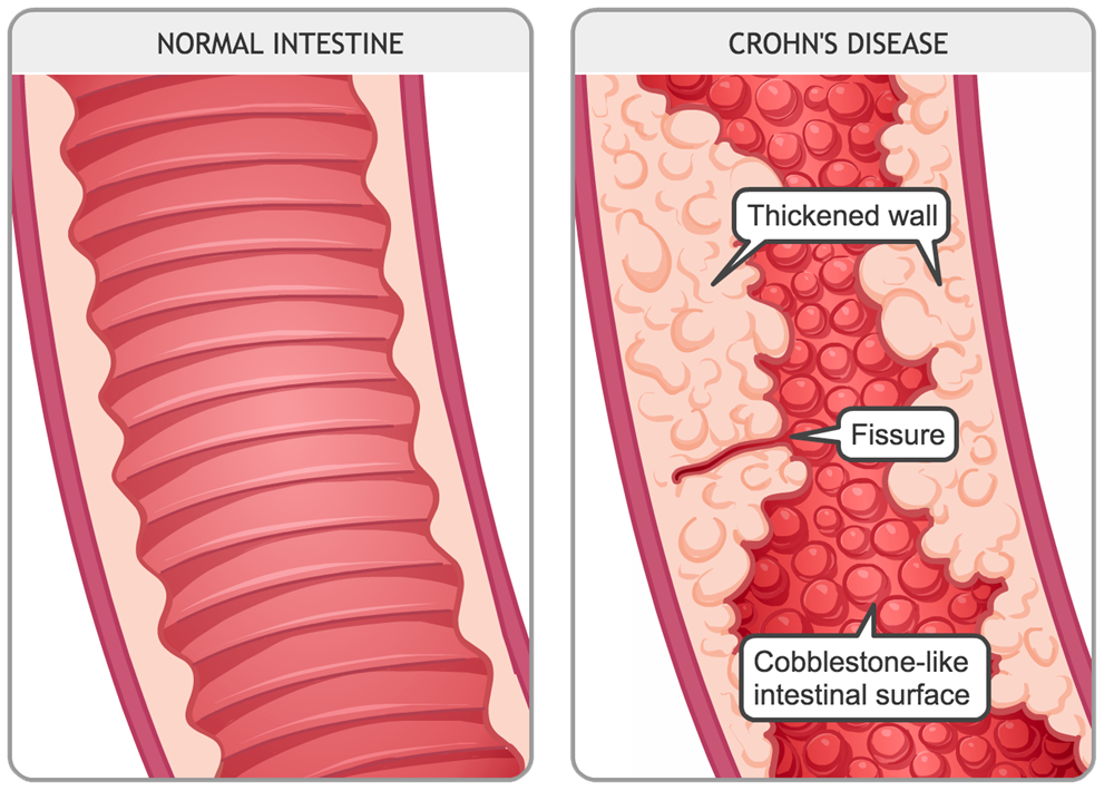 Image result for crohn