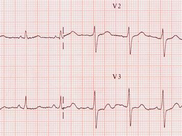Diagnostic des cardiopathies congénitales