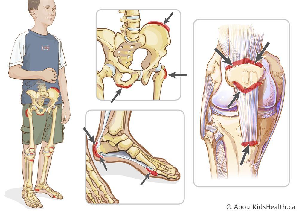 Juvenile enthesitis-related arthritis (ERA)