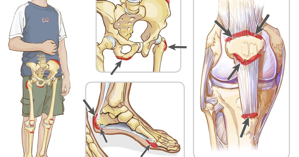Juvenile Enthesitis Related Arthritis Era