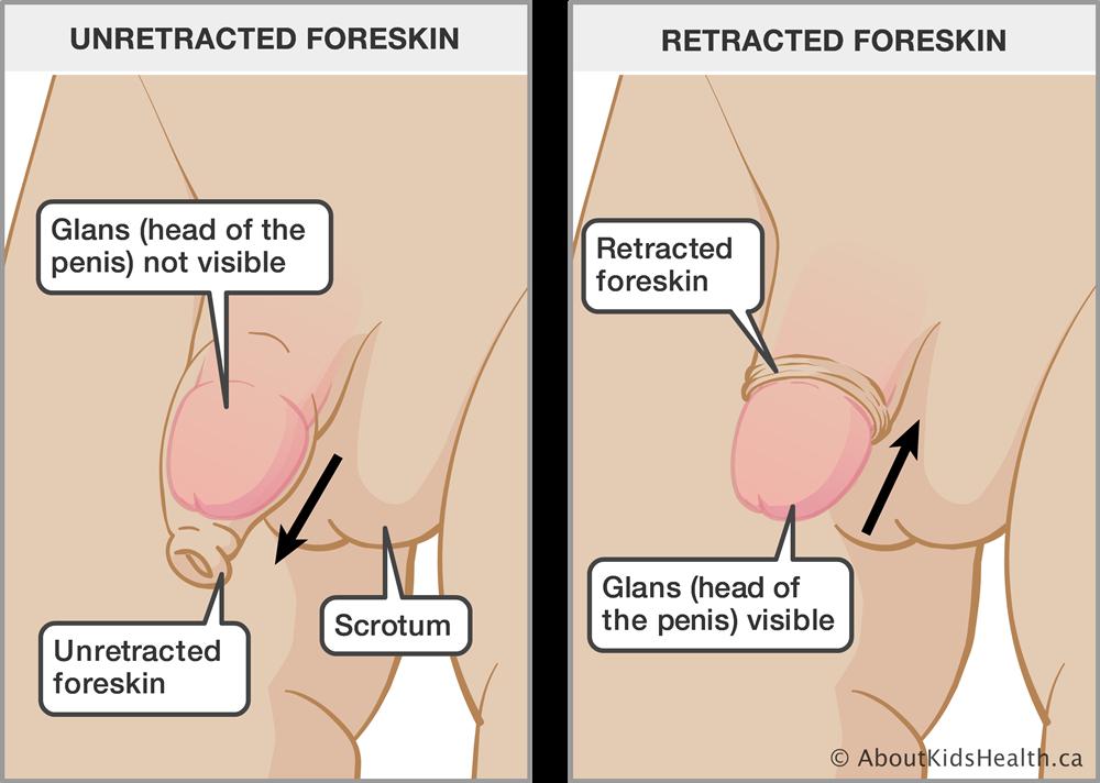 Foreskin Care In Children-2120