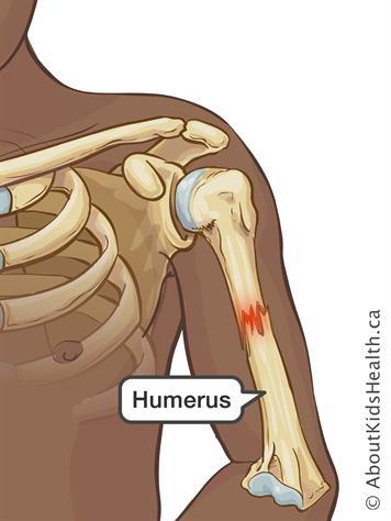 Upper arm (humerus) fracture