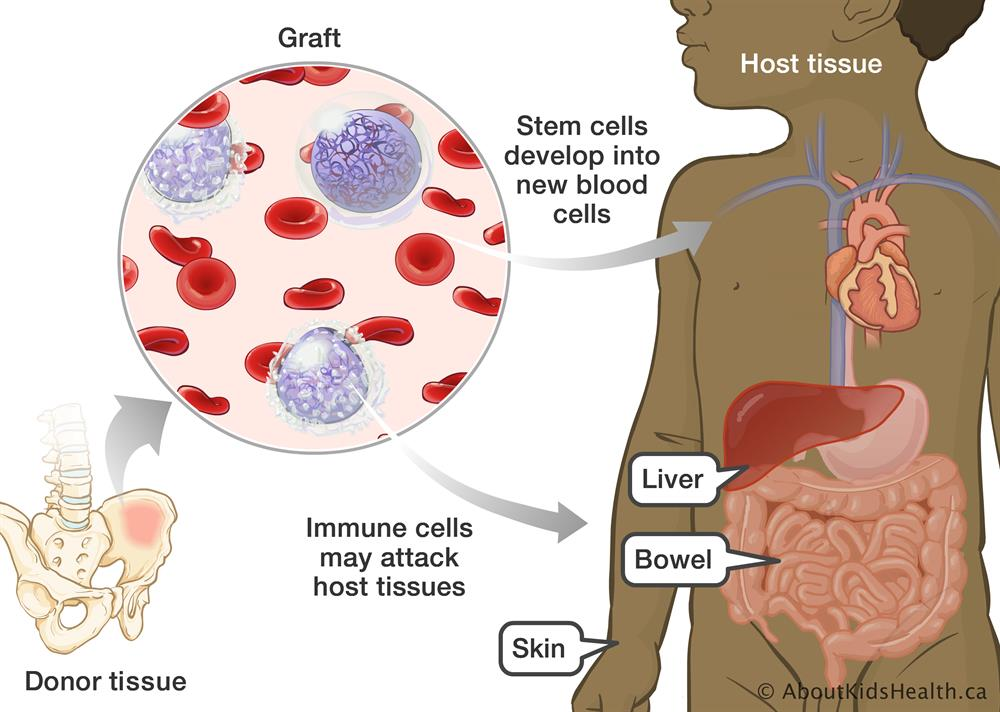 Graft Versus Host Disease After A Blood And Marrow Transplant