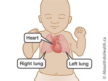 symptoms of congenital heart disease in babies