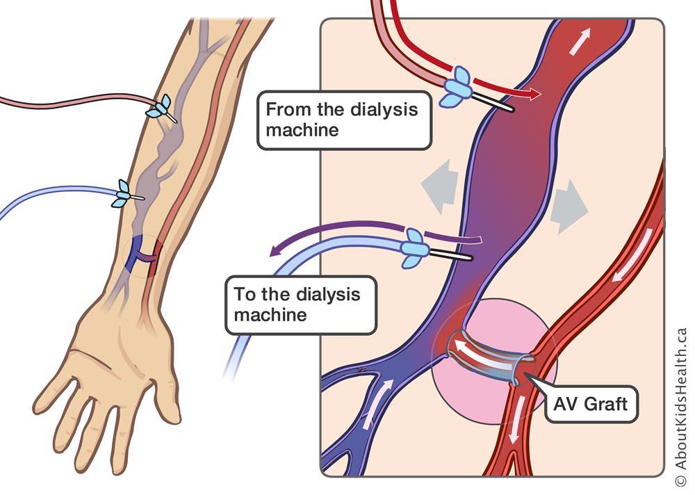Hemodialysis Using An Av Graft Or Av Fistula For Ease Of Access