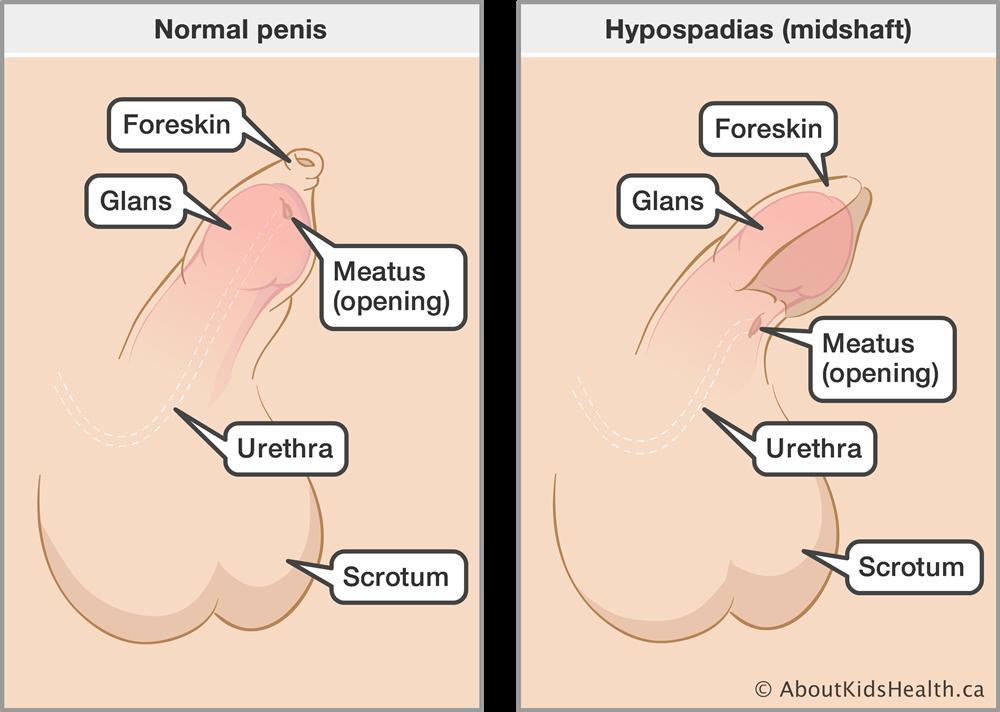 Genital Problems