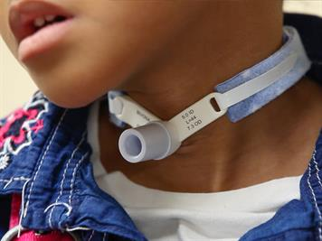 Tracheotomy and tracheostomy tube: How they help your child
