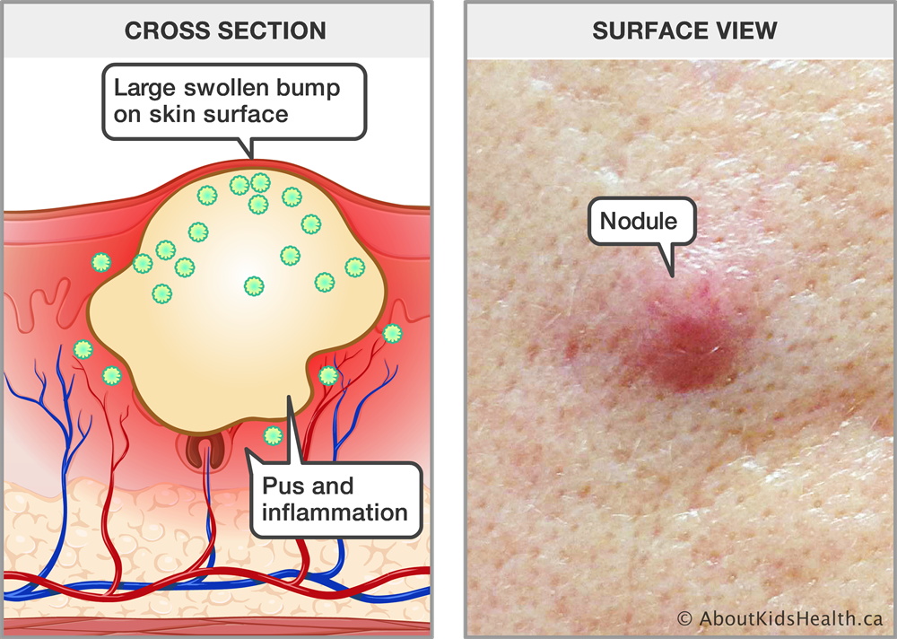 cross section of pus and inflammation under the skin with large swollen bump  on skin surface