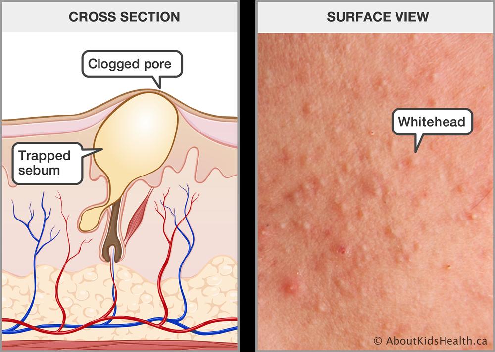 Acne (acne vulgaris)