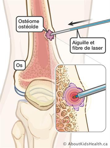 Ablation d'une tumeur osseuse guidée par l'image
