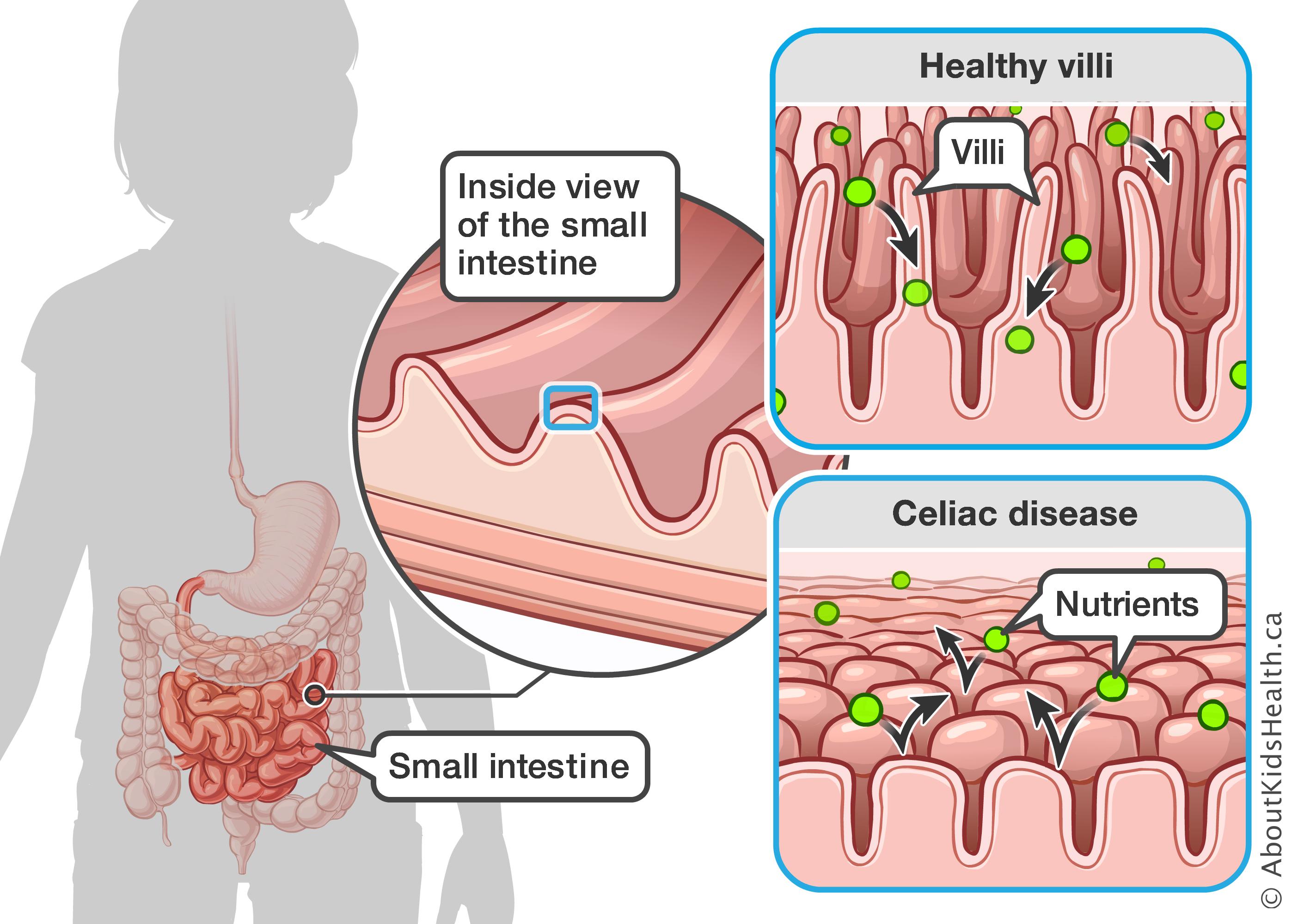 Celiac Intestine Diagram Wiring Diagram Data Today
