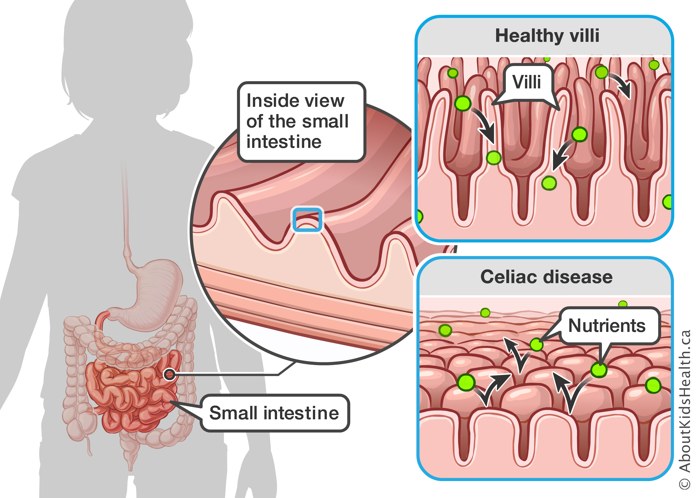 celiac disease celiac disease small intestine biopsy inside view of small intestine, comparing behaviours of nutrients in intestine with healthy villi to