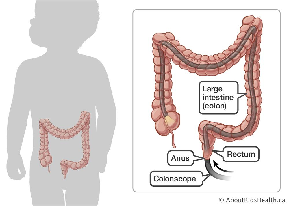 Colonscope inserted through anus into rectum and large intestine (colon)