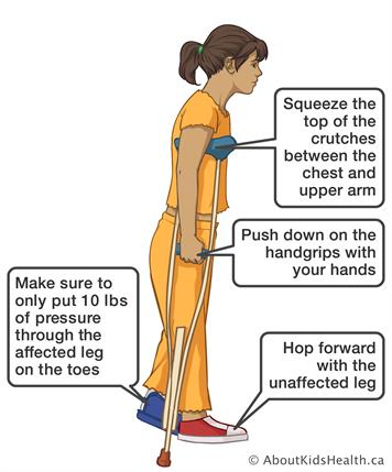 Crutches How To Use