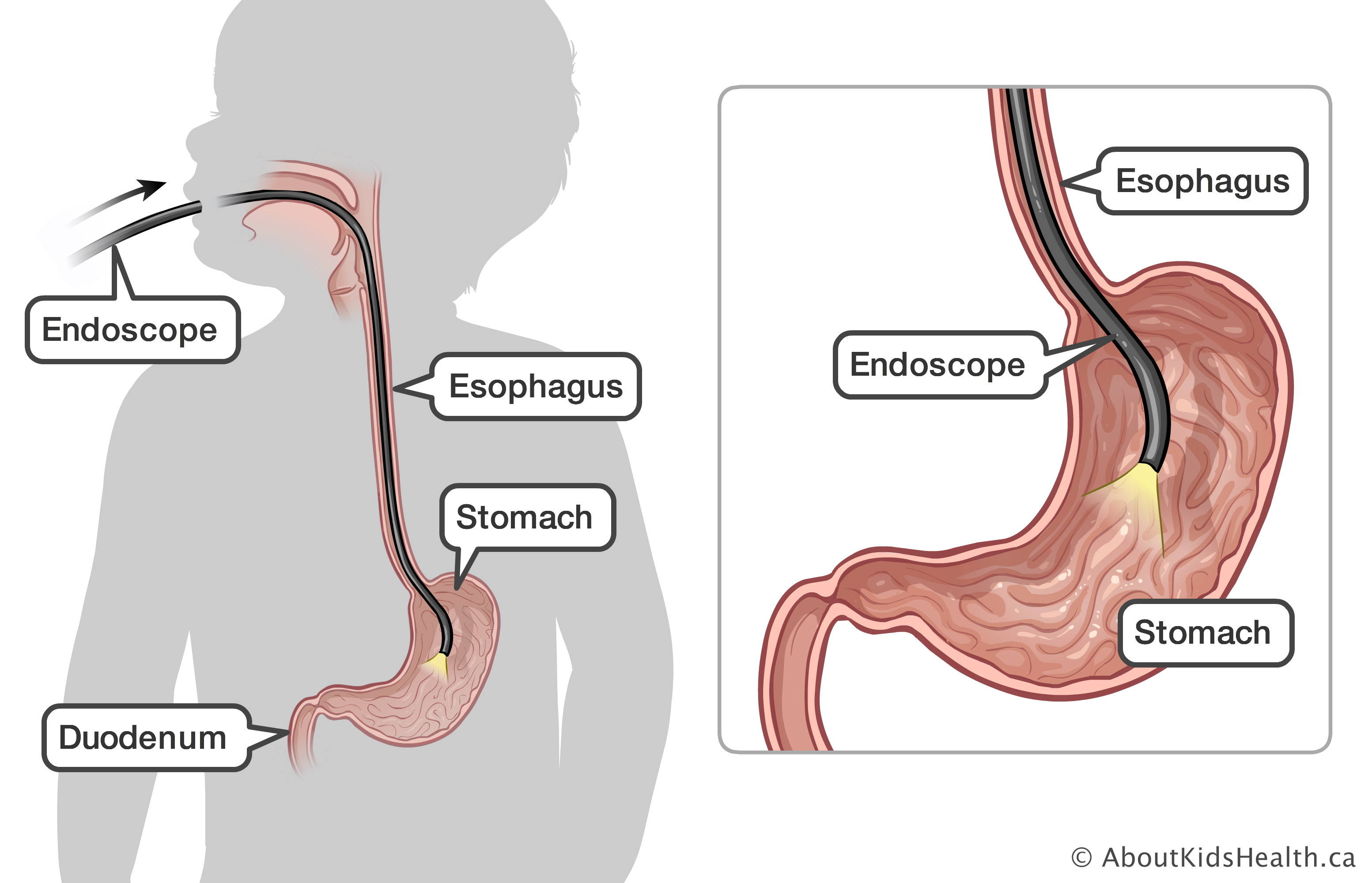 celiac disease celiac sprue disease the esophagus, stomach and duodenum are identified with endoscope inserted through the mouth and esophagus
