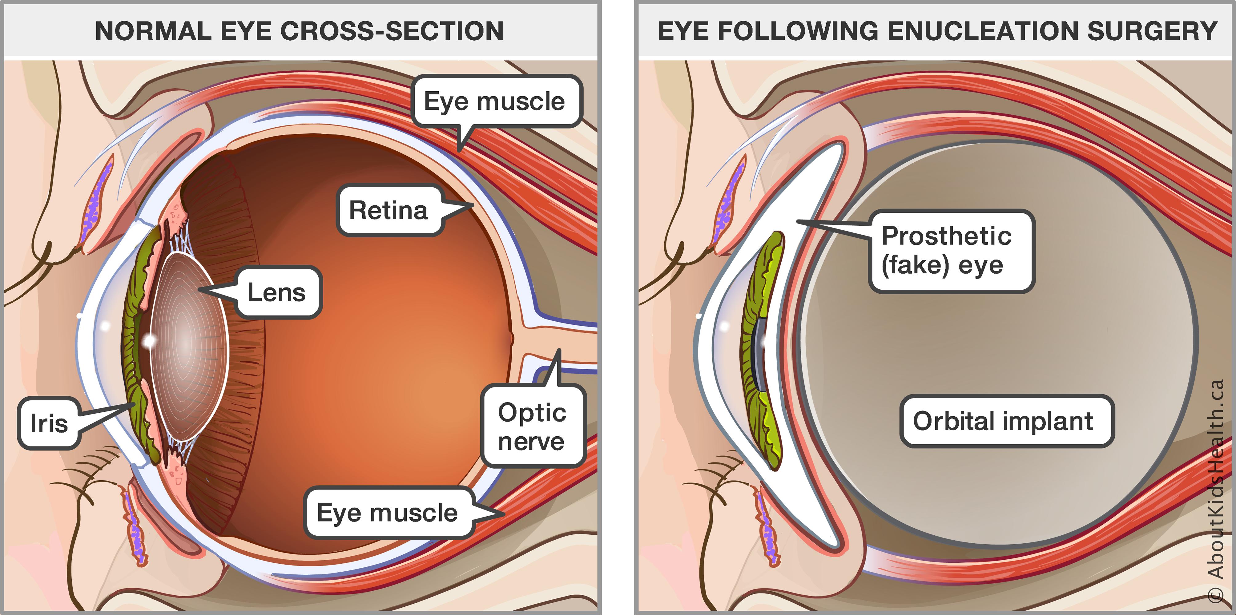 Eye Socket Diagram - Trusted Wiring Diagram