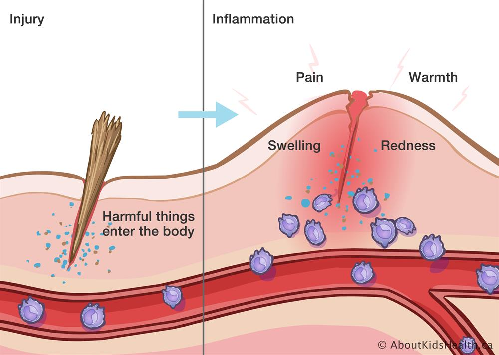 Inflammation and the immune system