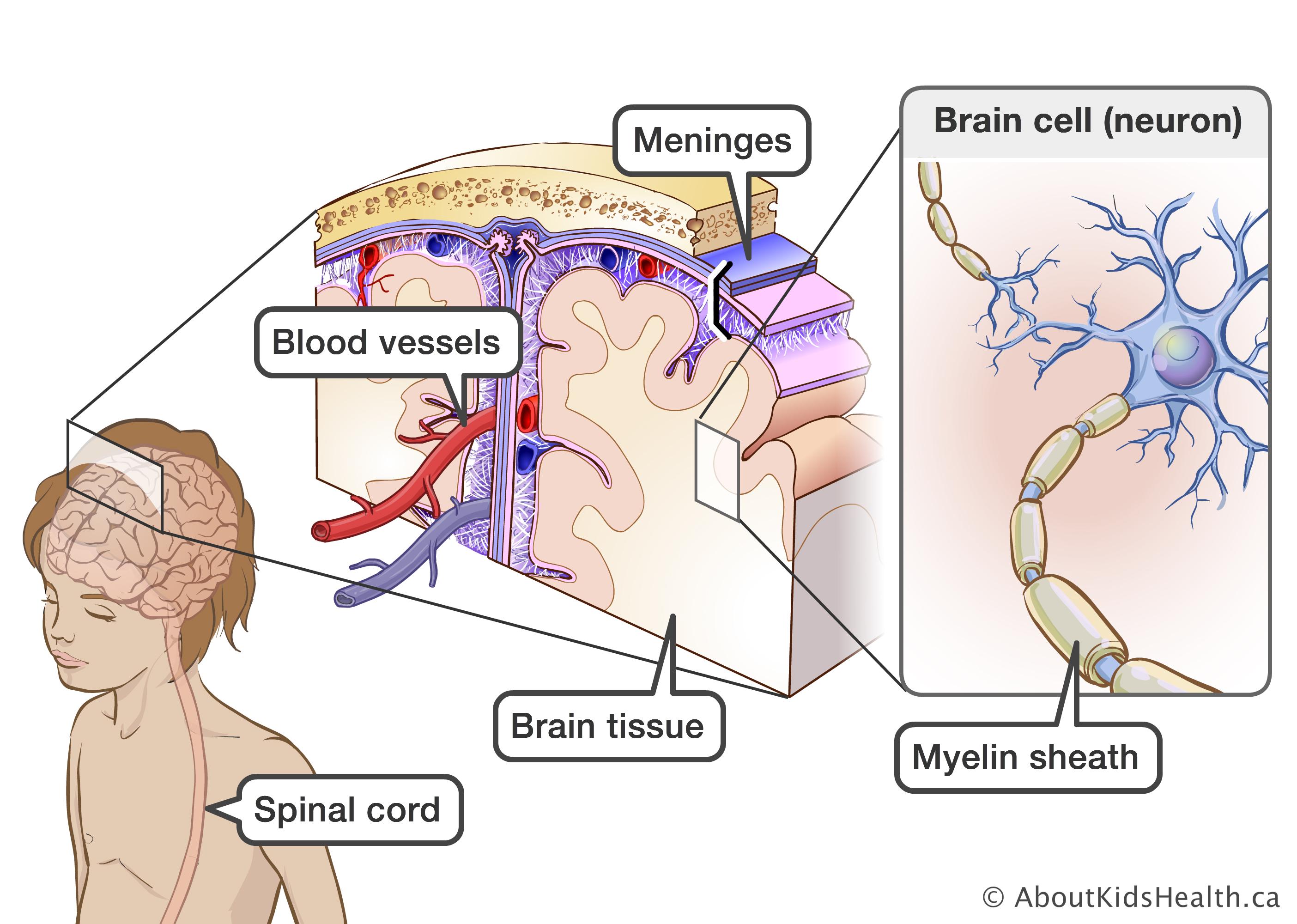 inflammatory brain disease Rat Brain Diagram