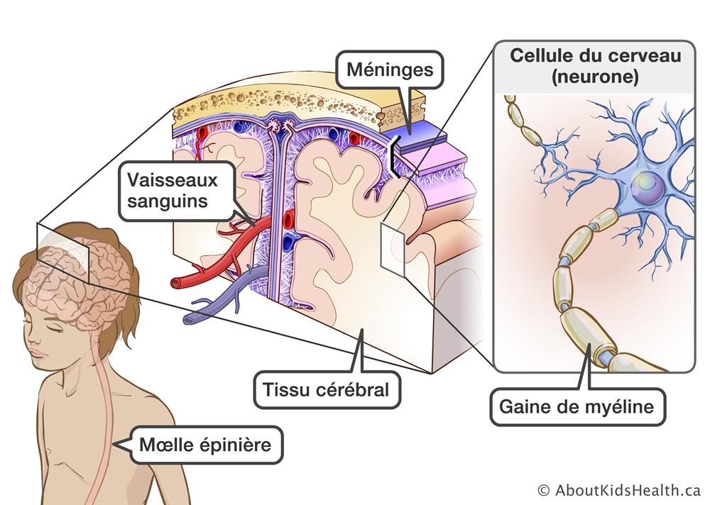 Maladies inflammatoires du cerveau