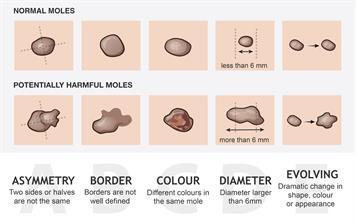 Moles (acquired nevi)
