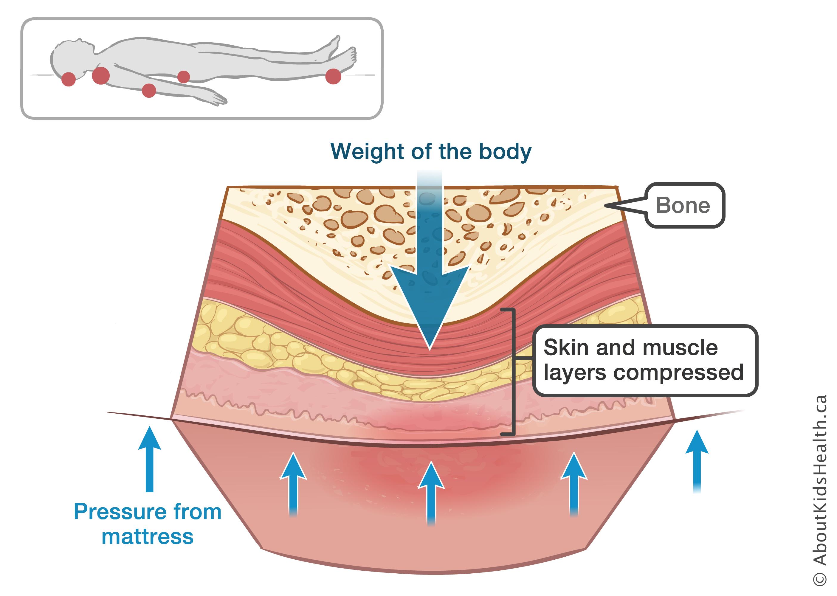 A description of decubitus ulcers also known as bedsores