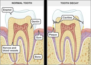 Teeth: Dental care for children