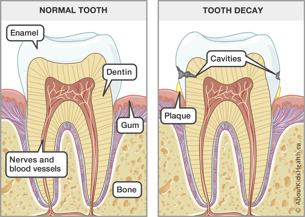 Teeth Dental Care For Children