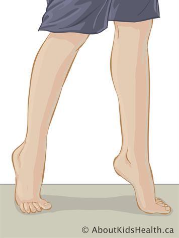 Toe walking, idiopathic