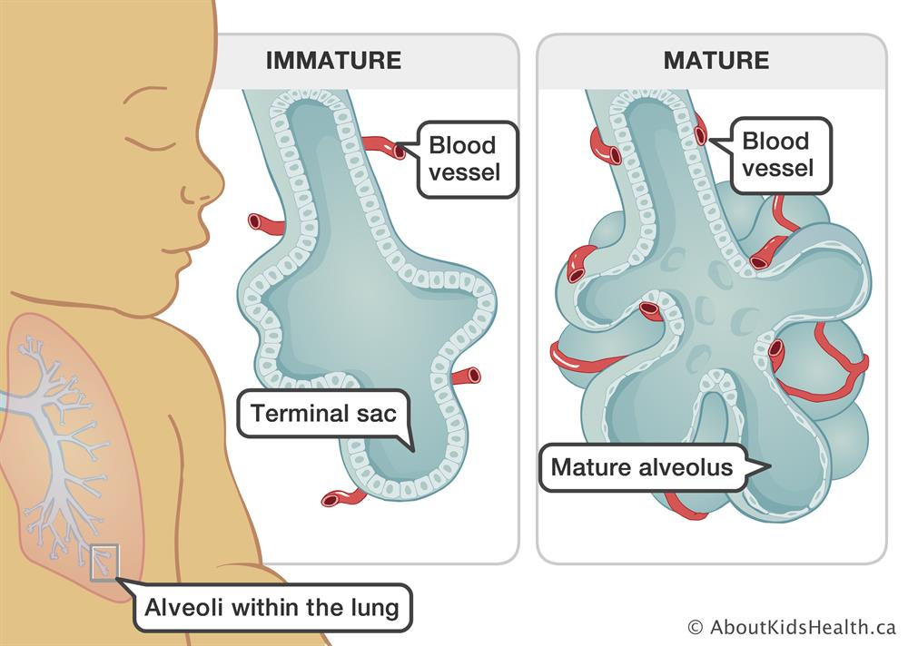 Illustration of immature alveoli compared to mature alveoli