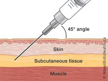 Subcutaneous injections: Injecting at home
